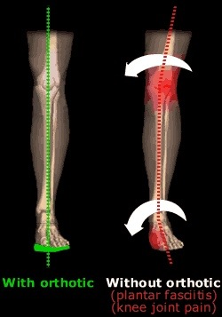 Orthotic Prescription: Joint Pain, Posture & Hyper-mobility